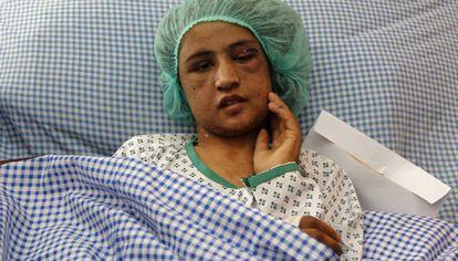 La joven Sahar Gul, en un hospital de Kabul antes de ser trasladada a la India.