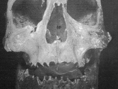 Cráneo de Bermudo III.