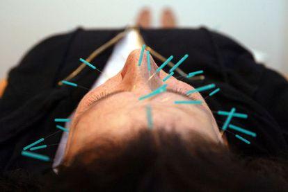 Una mujer durante una sesión de acupuntura.