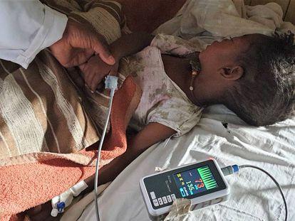 Meseret ingresó en hospital rural de Gambo (Etiopía) con un sarampión grave complicado con afectación respiratoria.