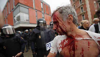 Herido después de la carga policial en la Barceloneta.