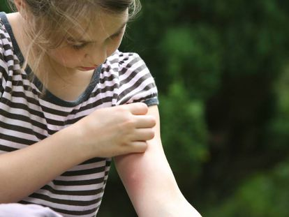 Cómo prevenir y aliviar las picaduras en los niños