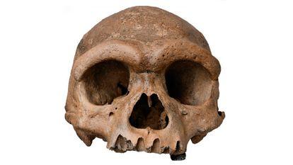 El cráneo de Harbin.