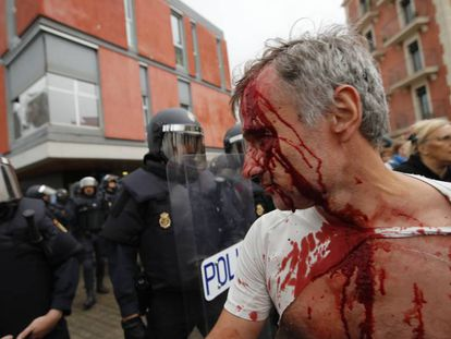 Herido tras la carga policial en la Barceloneta.