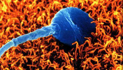 Un espermatozoide humano intenta fecundar un óvulo.