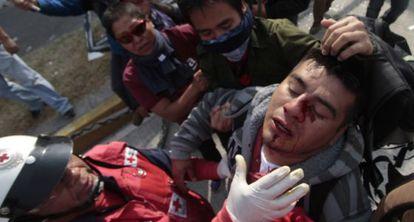 Imagen de un manifestante herido durante la protesta.