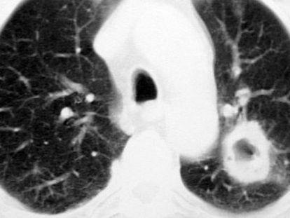 Tomografía computerizada de un cáncer de pulmón.