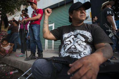 Ruperto Anaya, miembro de la Fuerza Rural, muestra una cicatriz del enfrentamiento del día anterior.