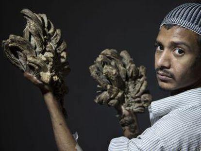 Las grandes verrugas de Abul Bajandar a causa de su rara enfermedad se han multiplicado. El paciente pide ser tratado en el extranjero