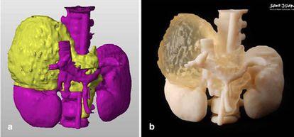 A la izquierda, reconstrucción digital del tumor. A la derecha, impresión en 3D con dos tipos de materiales.