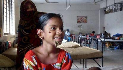 Sahana Katun, la primera 'mujer árbol' identificada, en el hospital de Dacca donde está siendo tratada.