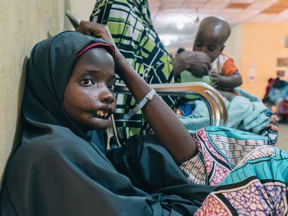 Amina, una paciente de noma de 18 años del estado de Yobe (Nigeria), en una visita al Hospital Sokoto Noma. Ella es una de las protagonistas del documental 'Restoring Dignity', de los cineastas franceses Claire Jeantet y Fabrice Catérini, producido por Inediz en colaboración con Médicos sin Fronteras (MSF).