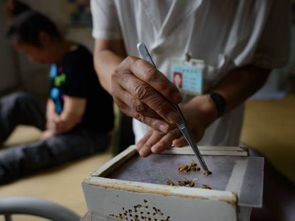 La medicina tradicional china usa aguijones de abeja contra el cáncer.