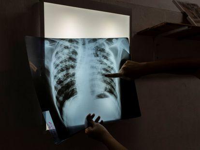 Mariela, especialista en enfermedades infecciosas, examina la radiografía de Jorge, un paciente de 24 años en tratamiento contra la tuberculosis, en Buenos Aires, Argentina.