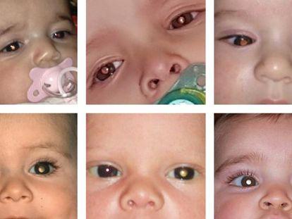 El retinoblastoma es el tercer cáncer infantil más frecuente en niños. Foto cedida por la Asociación Española de Retinoblastoma.