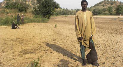 Un nigeriano afectado de filariasis linfática muestra su pierna, con los síntomas irreversibles de la elefantiasis.