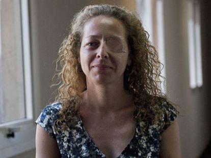 Ester Quintana perdió un ojo en la manifestación de la huelga general