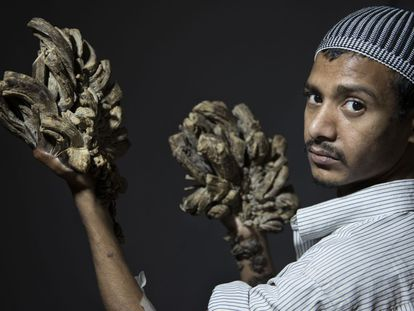 """Abul Bajandar muestra sus manos afectadas. Mañana se someterá a una primera intervención en Dacca para eliminar sus verrugas. """"Yo lo que quiero es poder abrazar a mi hija""""."""