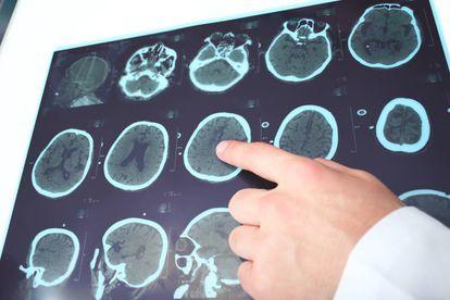 Los daños que provoca la esclerosis múltiple se registran en distintas partes del sistema nervioso central, lo que hace que se manifiesten en una amplísima variedad de síntomas.