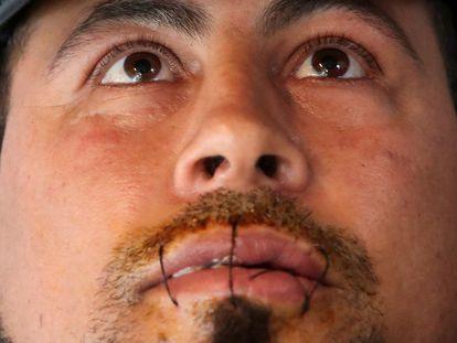 Hasni Abderrazzek, de 44 años, es un solicitante de asilo tunecino que solicita ser regularizado por el Gobierno belga para tener acceso a la atención médica y que participa en la huelga de hambre organizada hace más de un mes por más de 200 migrantes en la misma situación que él. Se ha cosido los labios a modo de protesta.