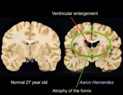 Aaron Hernandez sufría una Encefalopatía Traumática Crónica. Según los médicos, los daños que presentaba su cerebro, de 27 años, eran comparables a los de un hombre de 67 años.