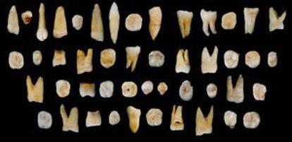 Los 47 dientes humanos hallados en China.