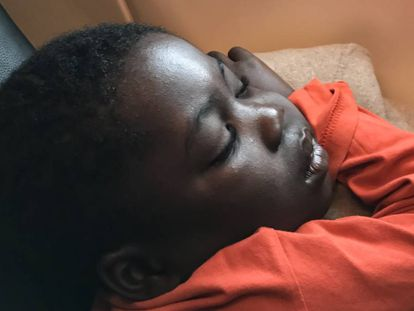 Jean Pierre es de Benín y voló a España para recibir tratamiento quirúrgico.