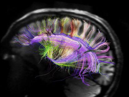 Una resonancia magnética del cerebro humano