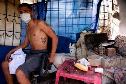Belhassen, inmigrante tunecino, muestra sus heridas en una chabola cerca del Centro Temporal de Inmigrantes de Melilla.
