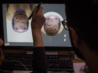Doctores evalúan a un paciente en una clínica turca.