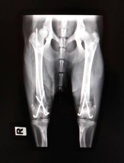 Radiografía de las patas traseras de la perra 'Katalina', operada en el hospital Rof Codina de Lugo.