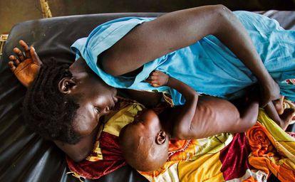 Una madre da de comer a un niño con malnutrición aguda en Aweil (Sudán del Sur).