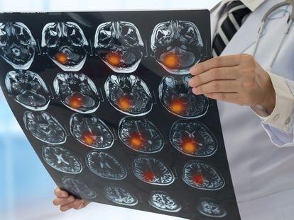 Un neurólogo observa los resultados de una resonancia magnética de un paciente que ha sufrido un ictus.