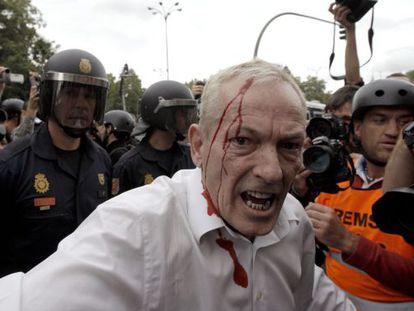 Uno de los heridos en la carga policial cuando varios jóvenes de la protesta del 25S intentaron traspasar la valla que protege el acceso al Congreso.
