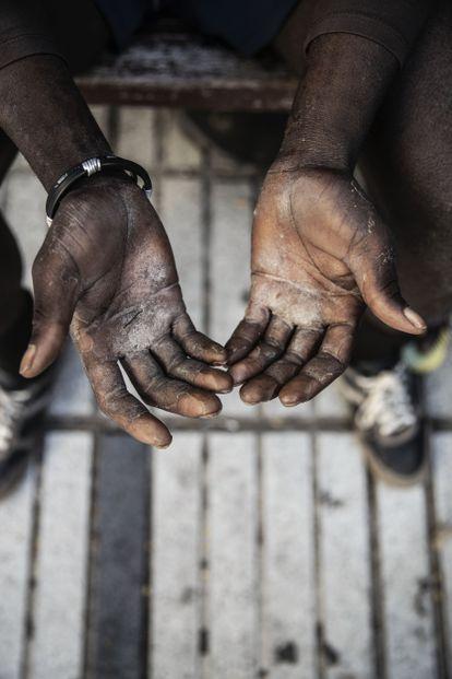 Detalle de las manos de un pescador de Gambia recién llegado a las islas. / ÁLVARO GARCÍA
