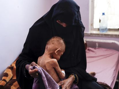Una mujer abraza a su hijo desnutrido en el Hospital Materno Al Sabeen, en Sanaa (Yemen) el 13 de febrero.
