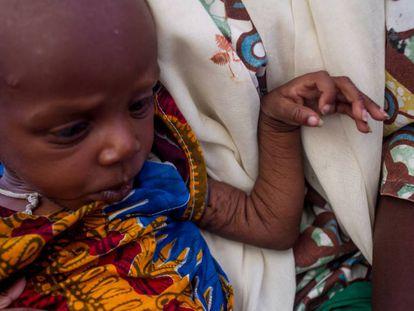 Yabissam, con malnutrición aguda severa es atendida en el asentamiento informal de Nguel Wanzam de Diffa, Níger.