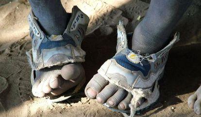 Unos pies de niño con zapatos rotos.