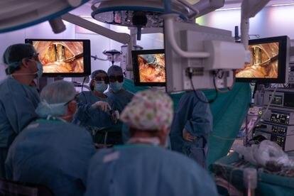 Operación el pasado septiembre en el Hospital Clinic, que está asociado a la Universidad de Barcelona.