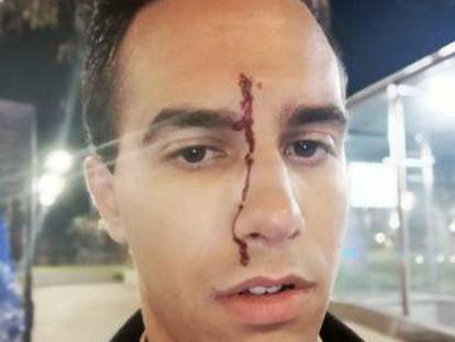 Uno de los agredidos en el ataque del pasado viernes, en una foto subida en su cuenta de Twitter.