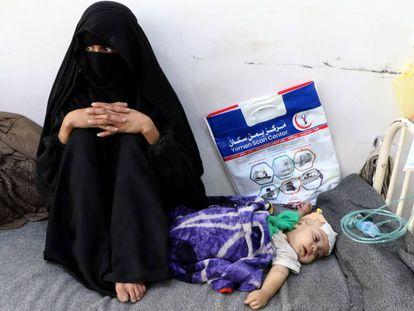 Una madre yemení, junto a su hijo desnutrido, este viernes en Saná.