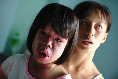 Nguyen Thi Hong Van, de 11 años y supuesta víctima del 'agente naranja', con su madre en su casa de Danang.