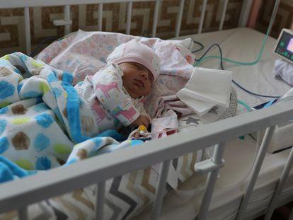 Roshana, un bebé recién nacido y afectado por la enfermedad del coronavirus (covid-19), en el Hospital Hazrate Ali Asghar, en Teherán, Irán el 27 de septiembre de 2020.