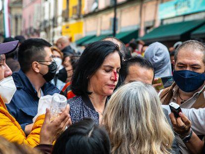 La alcaldesa electa de Álvaro Obregón, Lía Limón, muestra su lesión en la nariz frente al Congreso.