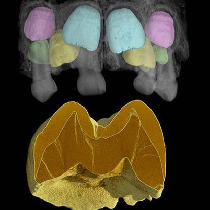 Tomografía de una mandíbula neandertal.