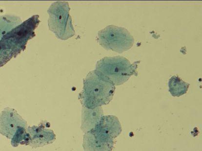 Vista al microscopio de la bacteria 'Gardnerella vaginalis', causante de infecciones en la vagina