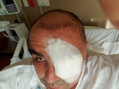 Jaime Díaz de León, paciente de 48 años contagiado de hongo negro en el Estado de Chihuahua.