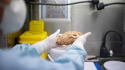 Una investigadora sostiene uno de los cerebros del banco de la fundación Cien el pasado 22 de junio.