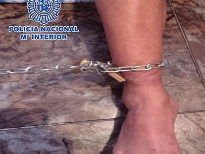 El pie derecho del hombre, con la cadena y los candados, en el momento de ser liberado.