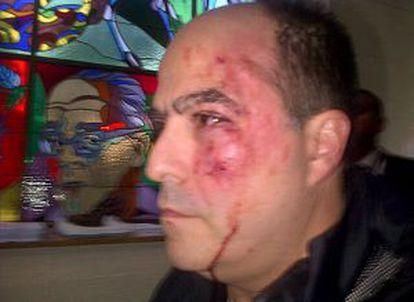 El opositor Julio Borges, tras la trifulca.